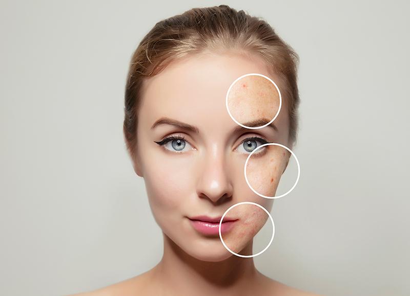 Prevenir les taques a la pell amb despigmentants